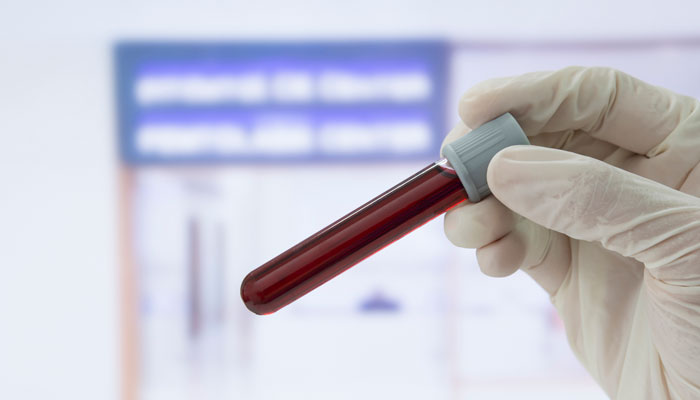 خون کا نیا ٹیسٹ ایجاد مستقبل میں ہونے والی بیماریوں اور علاج کا پتہ لگایا جاسکتا ہے