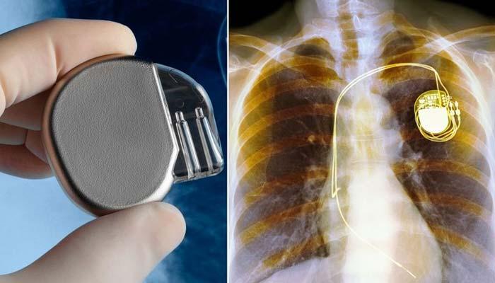 دل کی دھڑکن سے بجلی بنانے والا جدیدپیس میکر ایجاد
