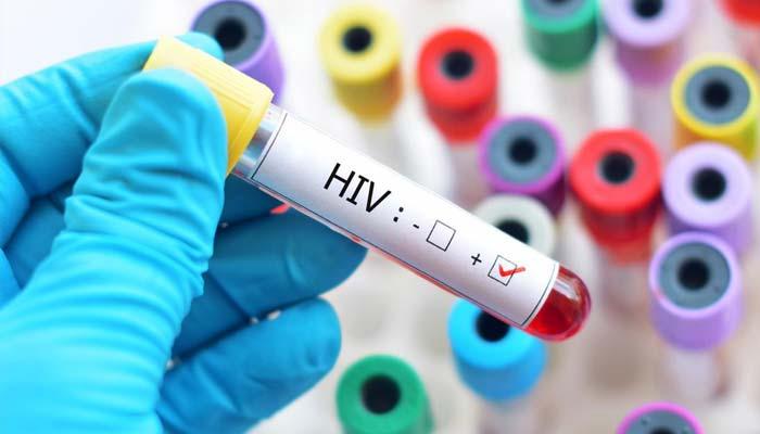 پاکستان میں ڈیڑھ لاکھ سے زائد افراد کے ایڈز کا شکار ہونے کا انکشاف