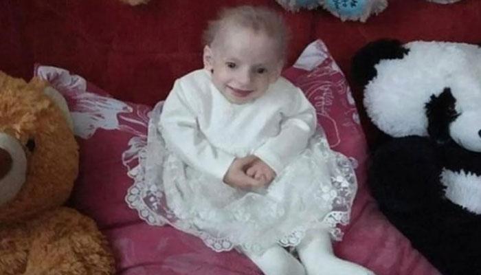 یوکرین میں بزرگی کے مرض میں مبتلا آٹھ سالہ بچی ہلاک
