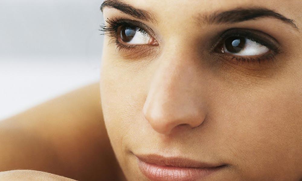 آنکھوں کے گرد سیاہ حلقے