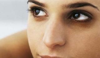 کیسے ختم ہونگے آنکھوں کے سیاہ حلقے؟