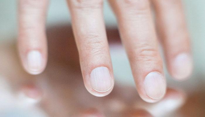 ناخنوں سے صحت کا راز جانیں