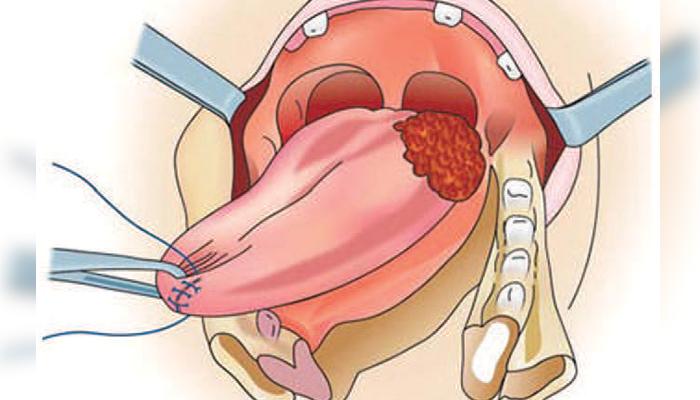 زبان کا سرطان