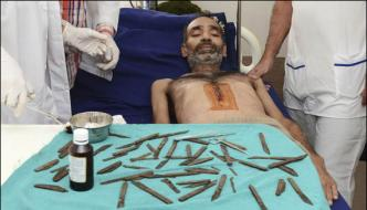 Indian Man Has 40 Knives Removed From Stomach After Urge To Eat Them