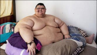 Mexico World Most Obese Man Surgery For Half Of His Weight Cut