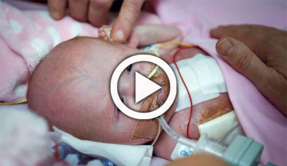 In Britain Baby Heart Put Into Body