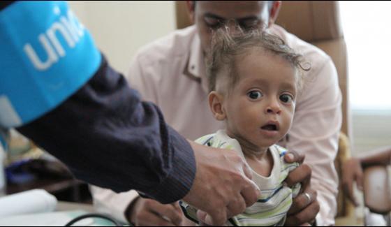 Unicef Highlights Impact Of War On Yemeni Children