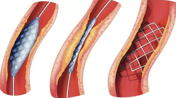 Usage Of Stents Increased In The Country