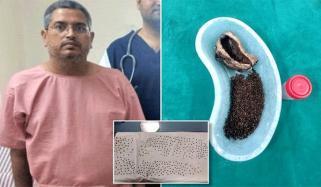 بھارتی شخص کے پیٹ سے 4100 پتھر نکال دئیے گئے