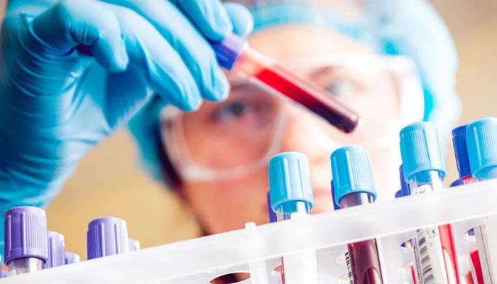 خون ٹیسٹ اب بتائے آپ کی خوراک