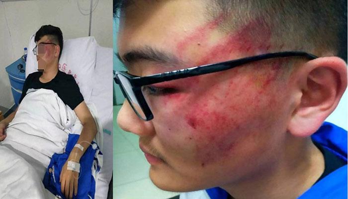 چین: طالب علم پر تھپڑوں کی بارش، استاد نوکری سے فارغ