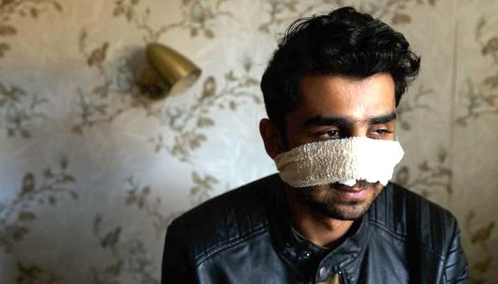 آسٹریلیا میں پاکستانی طالب علم پر نسل پرستوں کا بہیمانہ تشدد