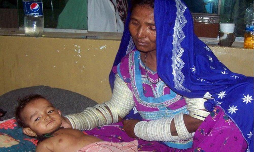 مٹھی: غذائیت کی کمی سے مزید 3بچوں کا انتقال