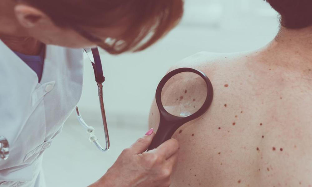 جلد کا کینسر خاموشی سے جان لیوا مرضمیں تبدیل ہوسکتا ہے، تحقیق
