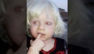 لال آنکھوں، سفید بالوں والی دُنیا کی واحد بچی