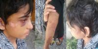 11 Years Old Kanza Was Being Tortured For Two Years