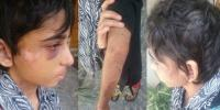 11 Year Old Domestic Worker Subjected To Brutal Torture In Rawalpindi