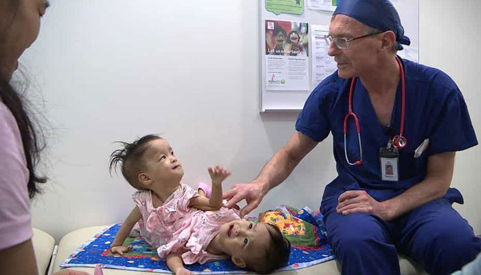 آسٹریلیا: دھڑجڑی بہنوں کو سرجری کے بعد الگ کردیا گیا