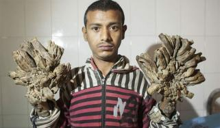 Bangladeshs Tree Man Is Back In Hospital And Needs More Surgery