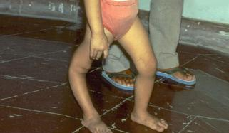 Polio Virus In 5 Months Old Baby Of Hangu