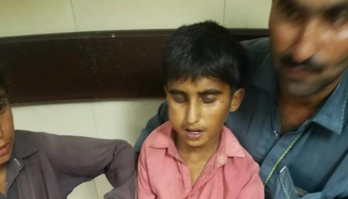کراچی:11سالہ لڑکاکتے کے کاٹے کی بیماری ریبیز سے جاں بحق
