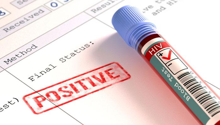 شکارپو: 6 افراد میں ایچ آئی وی پازیٹو کی تصدیق