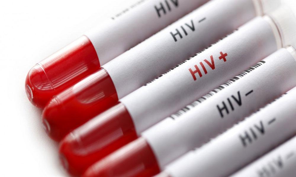 رتوڈیرو میں ایچ آئی وی پازیٹو کیسز کی تعداد 438 ہو گئی