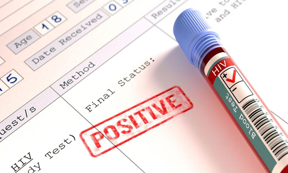 رتو ڈیرو: 534 افراد میں ایچ آئی وی وائرس کی تصدیق