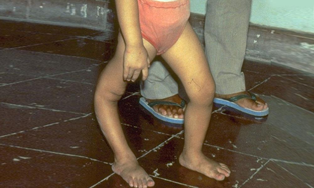 خیبر پختون خوا کے ضلع شانگلہ کے بچے میں پولیو کی تصدیق