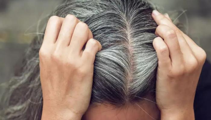 سفید بالوں سے نجات کیسے پائیں؟