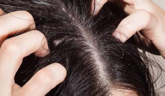 List Of Home Remedies For Dandruff Treatment