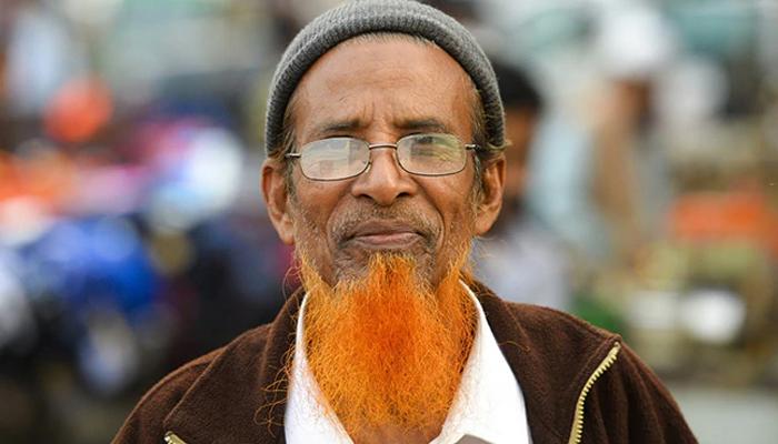 بنگلادیشیوں کے بال نارنجی رنگ کے کیوں ہوتے ہیں؟