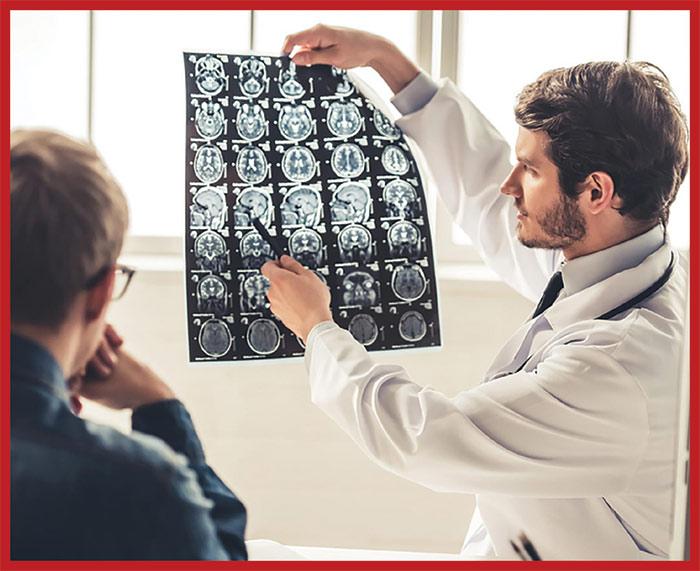 'مرگی' ایک دماغی بیماری