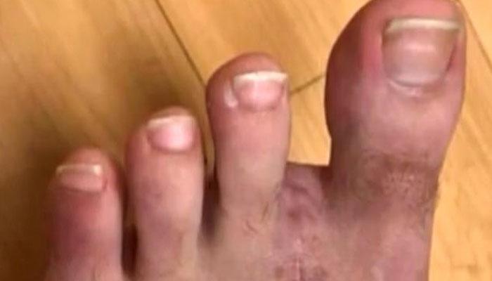ہاتھ کا انگوٹھا کٹنے پر پیر کی انگلی جوڑ دی گئی