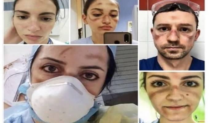 اٹلی کے ڈاکٹروں کی دنیا بھر میں تعریف