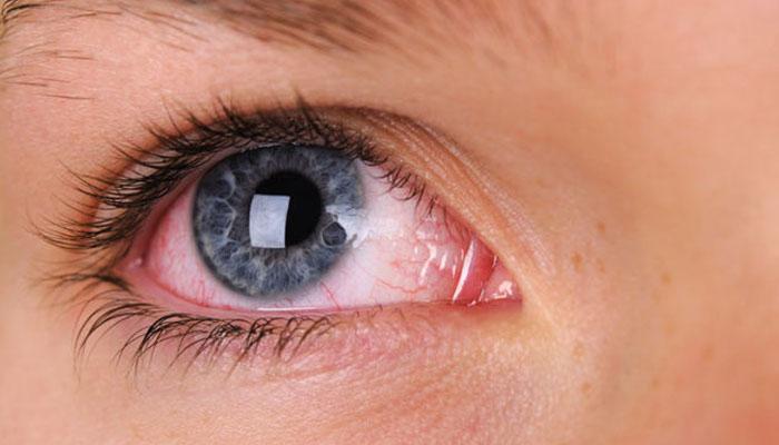 آنکھوں کا لال ہونا بھی کورونا کی علامت ہے