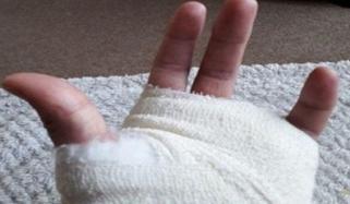 گھریلو جھگڑے میں بیوی نے شوہر کی انگلیاں توڑ دیں