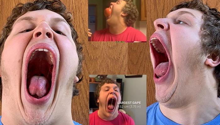 دنیا میں سب سے بڑا منہ کھولنے والا نوجوان