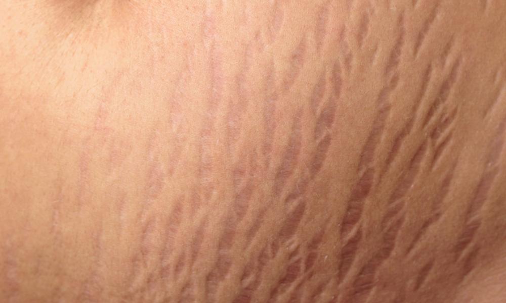 کاسٹر کا تیل جلد پر تناؤ کے نشانات ختم کرنے میں مفید