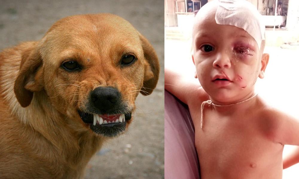 کورنگی، آوارہ کتے کے حملے، دو سالہ بچےسمیت تین زخمی
