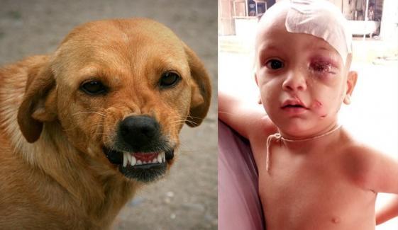 کورنگی، آوارہ کتے کاحملہ، دو سالہ بچہ زخمی