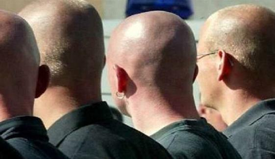 مردوں کے گنجے سر سے بجلی پیدا کرنے کی تیاریاں