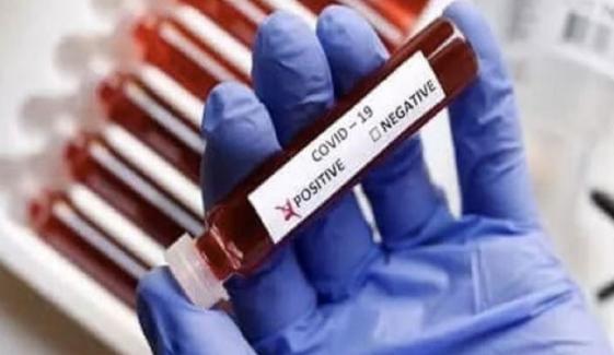 سندھ میں کورونا وائرس کے مزید 1258 کیسز، 6 اموات