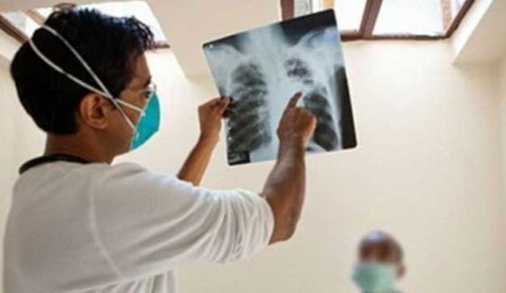محکمہ صحت سندھ کا ٹی بی کے مرض پر قابو پانے کیلئے اہم فیصلہ