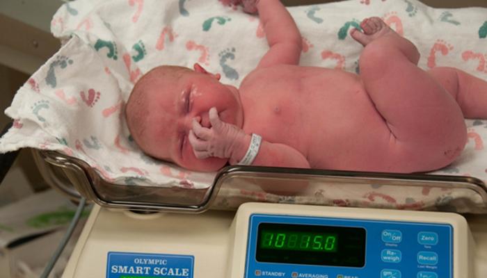 پیدائشی اضافی وزن ذیابطیس 2 کےخدشات کا سبب بنتا ہے