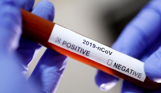 سندھ میں کورونا وائرس کے 673 مزید کیسز، 7 اموات ہوئیں، وزیراعلیٰ