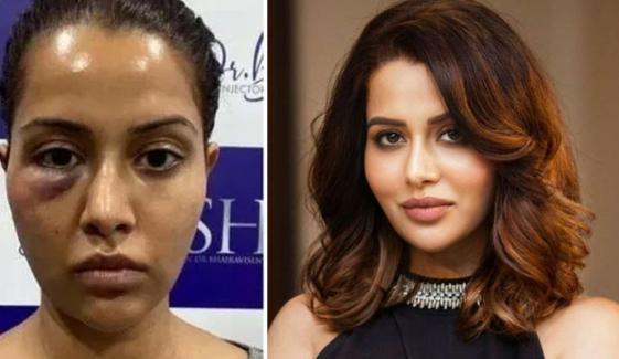 بھارتی اداکارہ کو 'فیشل' کرانا مہنگا پڑگیا