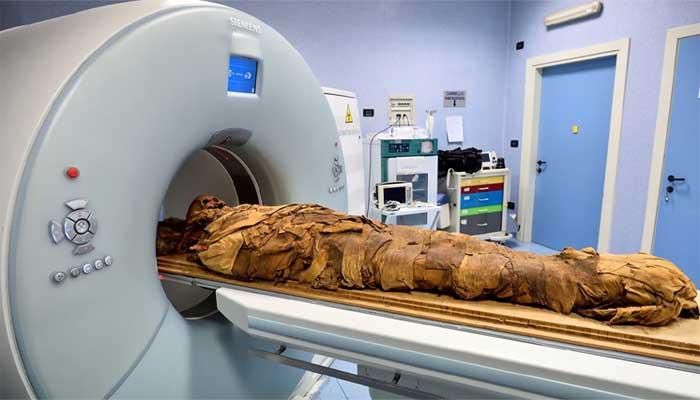 اٹلی: مصری ممی میں موجود پر اسراریت دریافت کرنے کے لیے سی ٹی اسکین کا استعمال