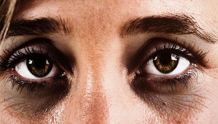 آنکھوں کے گرد سیاہ حلقوں کا کریں خاتمہ